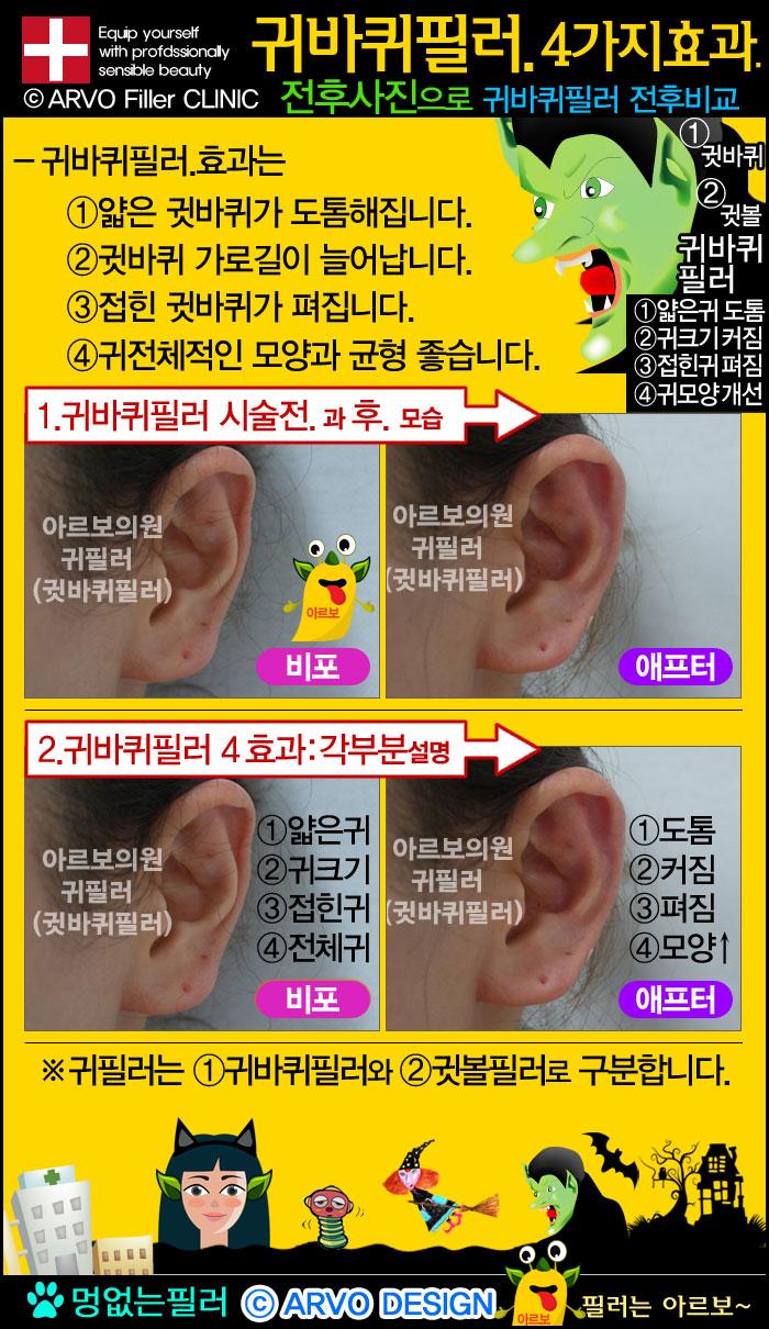 귀필러효과,귀바퀴필러효과,귀바퀴필러,귀필러,귓바퀴필러