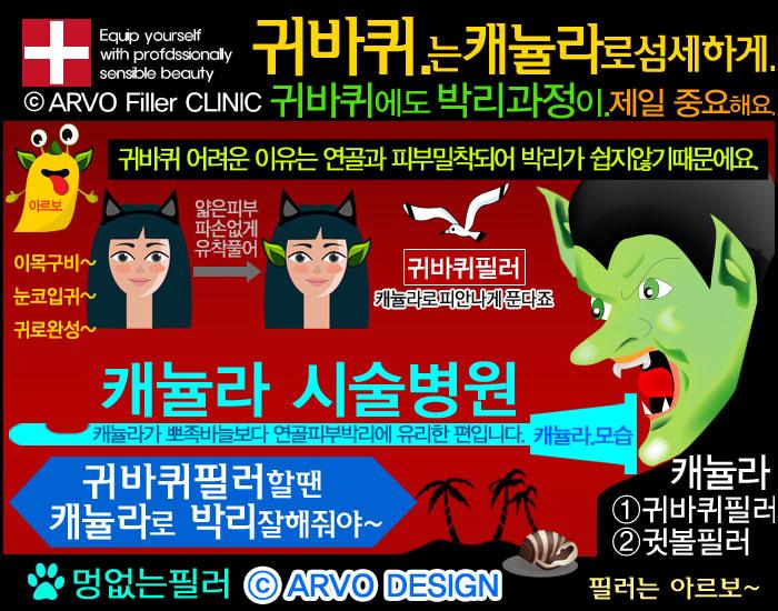 귀성형,귀바퀴필러효과,귀바퀴필러,귀필러,귓바퀴필러,아르보의원